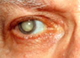 surgery to remove cataracts